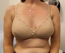 Left Mastectomy, LD Flap and Implant results at 1 year